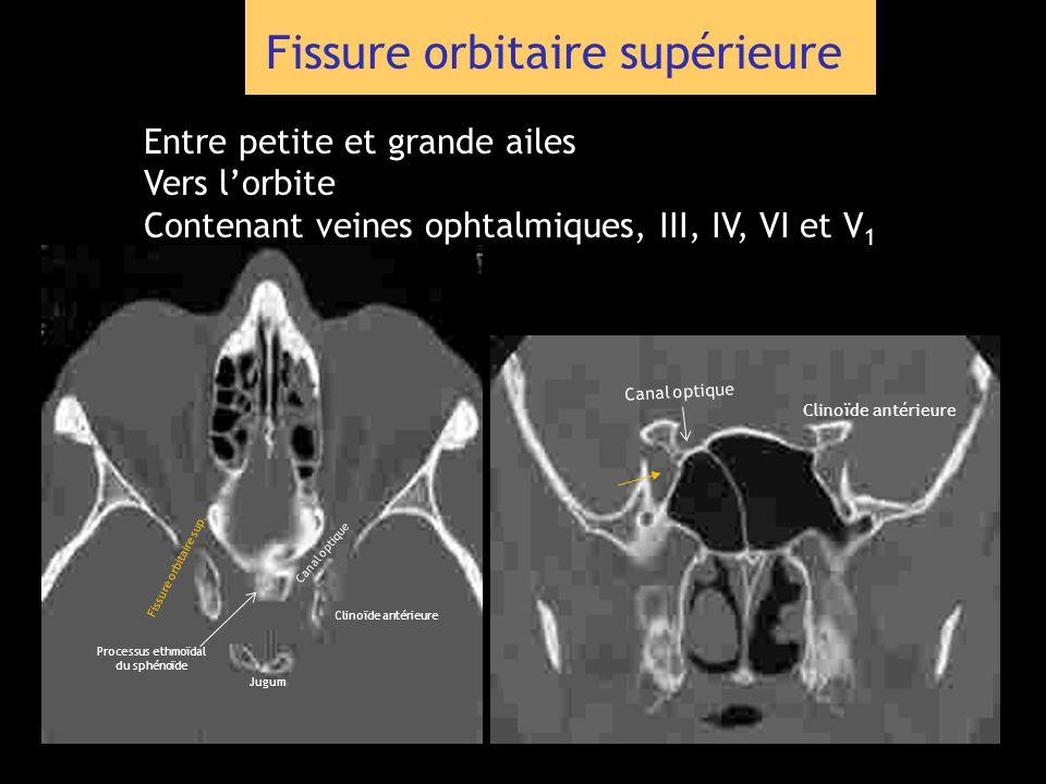 Fissure orbitaire supérieure Entre petite et grande ailes Vers lorbite Contenant veines ophtalmiques, III, IV, VI et V 1 Clinoïde antérieure Jugum Can