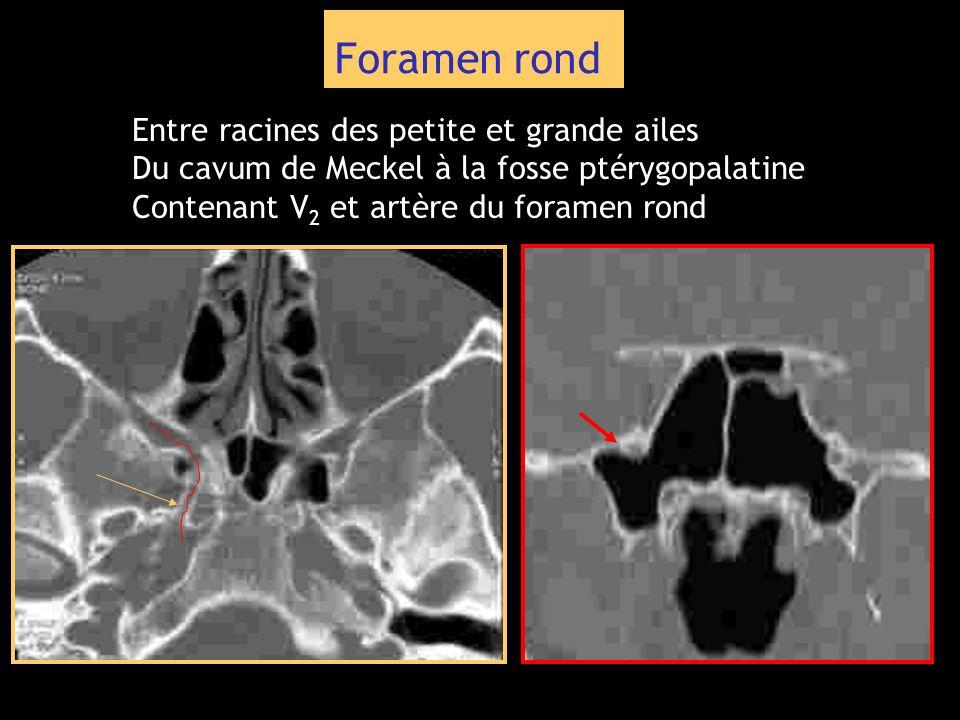 Foramen rond Entre racines des petite et grande ailes Du cavum de Meckel à la fosse ptérygopalatine Contenant V 2 et artère du foramen rond