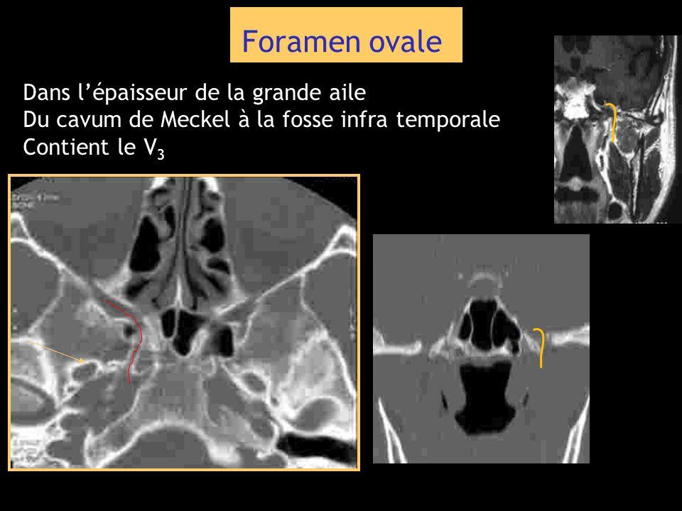 Foramen ovale Dans lépaisseur de la grande aile Du cavum de Meckel à la fosse infra temporale Contient le V 3