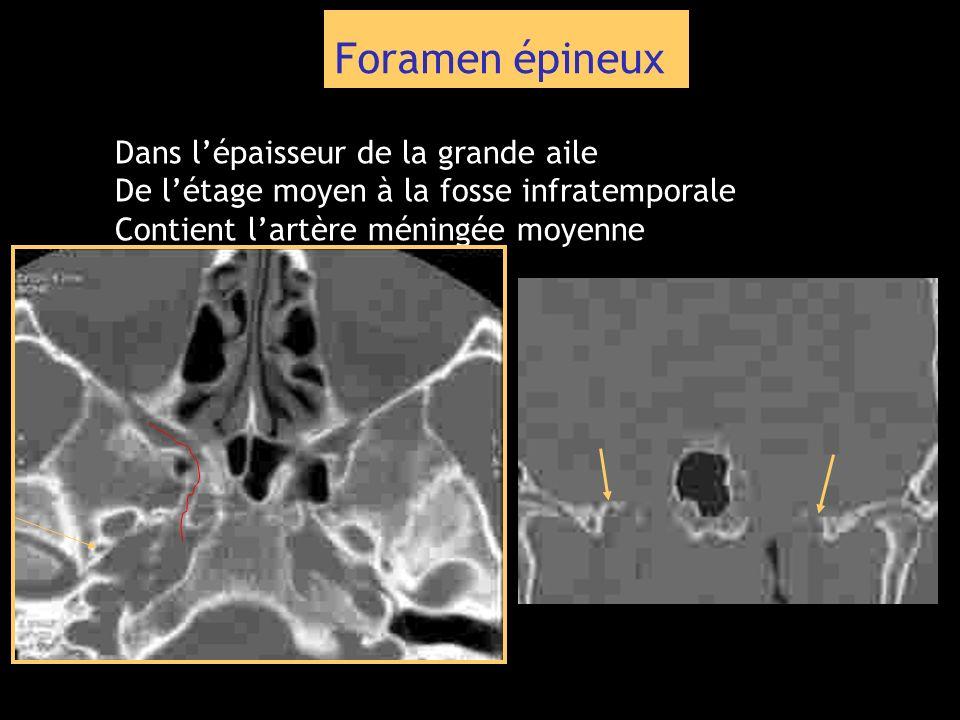Foramen épineux Dans lépaisseur de la grande aile De létage moyen à la fosse infratemporale Contient lartère méningée moyenne