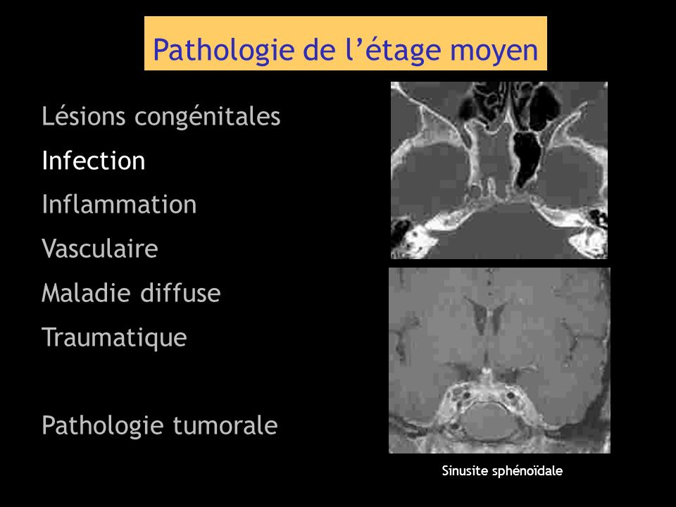 Pathologie de létage moyen Lésions congénitales Infection Inflammation Vasculaire Maladie diffuse Traumatique Pathologie tumorale Sinusite sphénoïdale