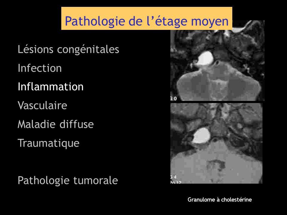 Pathologie de létage moyen Lésions congénitales Infection Inflammation Vasculaire Maladie diffuse Traumatique Pathologie tumorale Granulome à cholesté