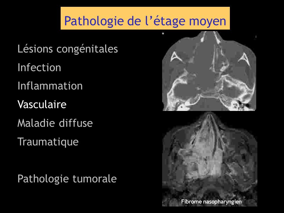 Pathologie de létage moyen Lésions congénitales Infection Inflammation Vasculaire Maladie diffuse Traumatique Pathologie tumorale Fibrome nasopharyngi