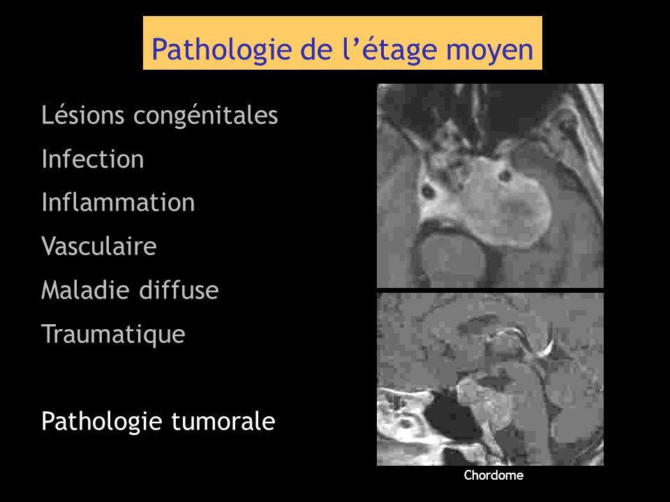 Pathologie de létage moyen Lésions congénitales Infection Inflammation Vasculaire Maladie diffuse Traumatique Pathologie tumorale Chordome
