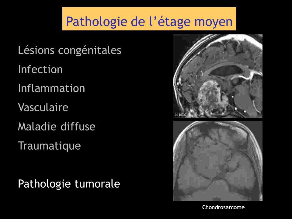 Pathologie de létage moyen Lésions congénitales Infection Inflammation Vasculaire Maladie diffuse Traumatique Pathologie tumorale Chondrosarcome