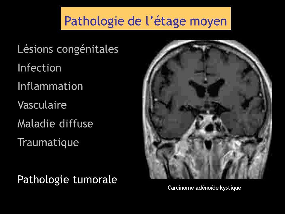 Pathologie de létage moyen Lésions congénitales Infection Inflammation Vasculaire Maladie diffuse Traumatique Pathologie tumorale Carcinome adénoïde k