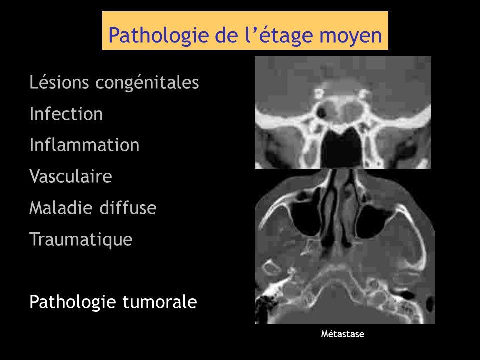 Pathologie de létage moyen Lésions congénitales Infection Inflammation Vasculaire Maladie diffuse Traumatique Pathologie tumorale Métastase