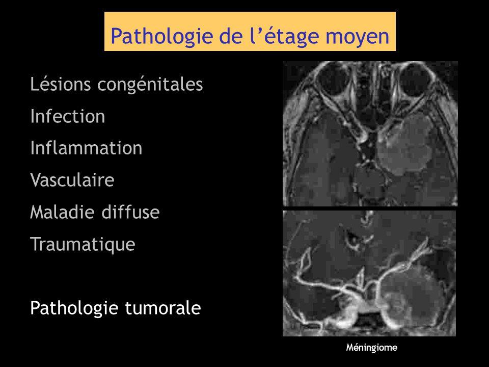 Pathologie de létage moyen Lésions congénitales Infection Inflammation Vasculaire Maladie diffuse Traumatique Pathologie tumorale Méningiome