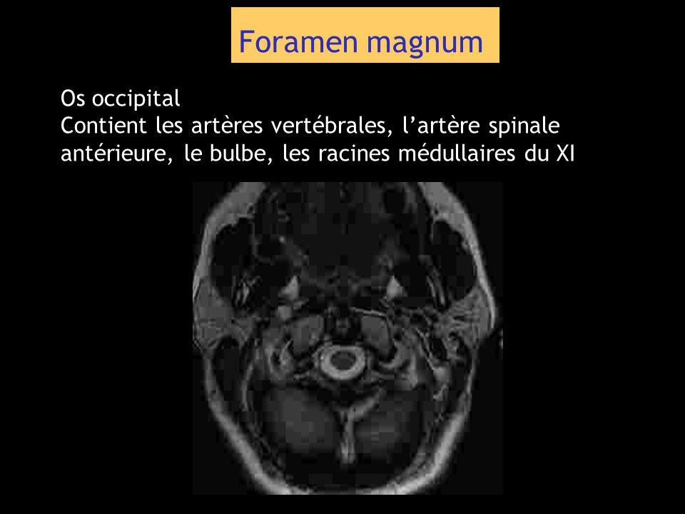 Foramen magnum Os occipital Contient les artères vertébrales, lartère spinale antérieure, le bulbe, les racines médullaires du XI