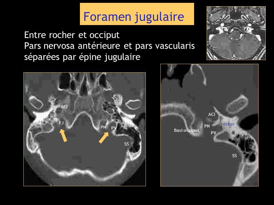 Foramen jugulaire Entre rocher et occiput Pars nervosa antérieure et pars vascularis séparées par épine jugulaire SS PV PN ACI FJ SS ACI PV PN Basi oc