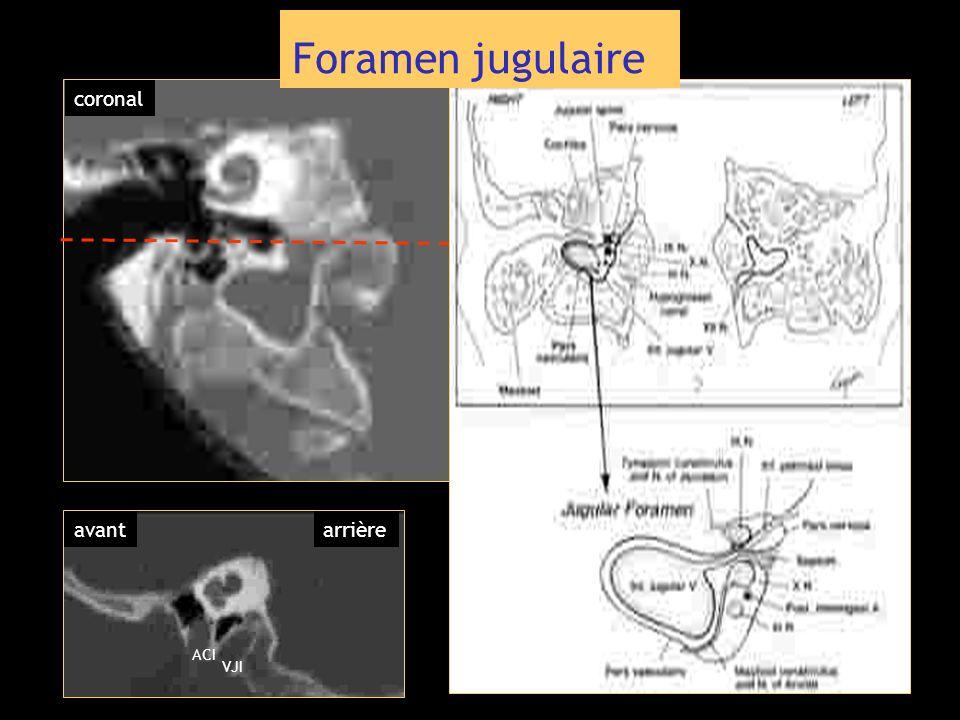 coronal ACI VJI avantarrière Foramen jugulaire