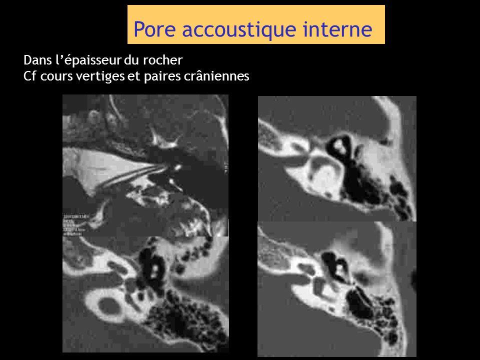 Pore accoustique interne Dans lépaisseur du rocher Cf cours vertiges et paires crâniennes