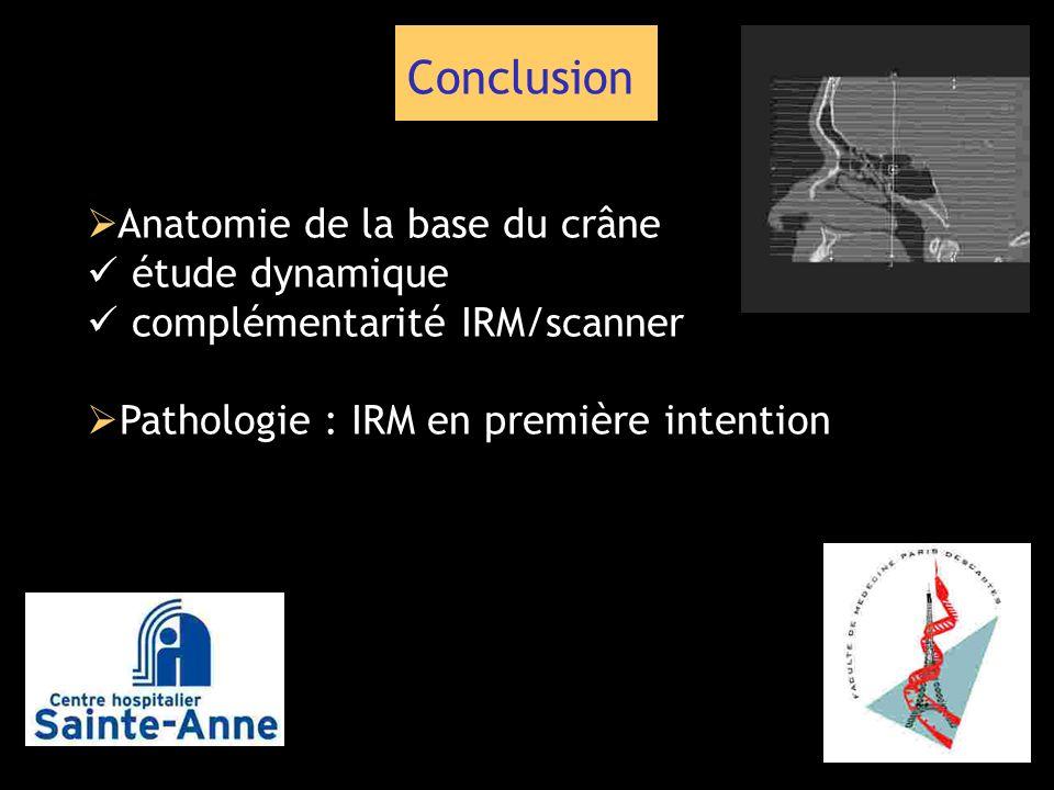 Conclusion Anatomie de la base du crâne étude dynamique complémentarité IRM/scanner Pathologie : IRM en première intention