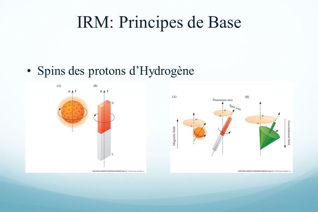 Spins des protons dHydrogène IRM: Principes de Base