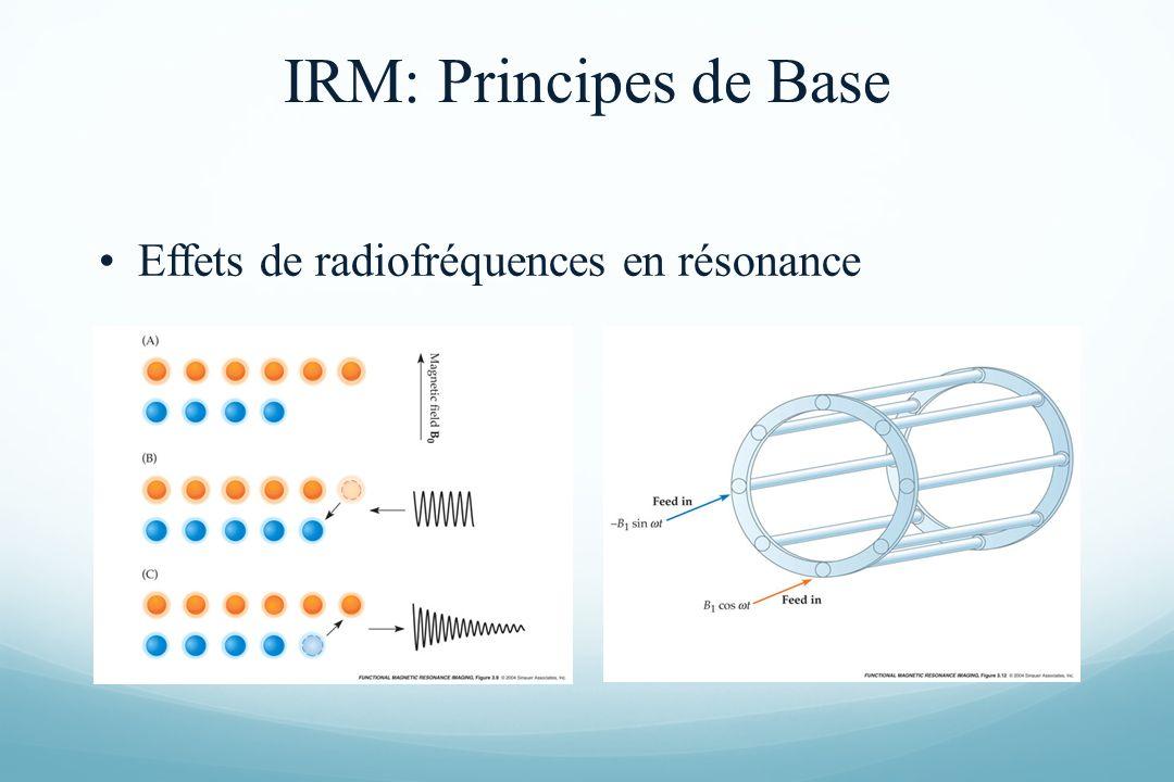 Effets de radiofréquences en résonance IRM: Principes de Base