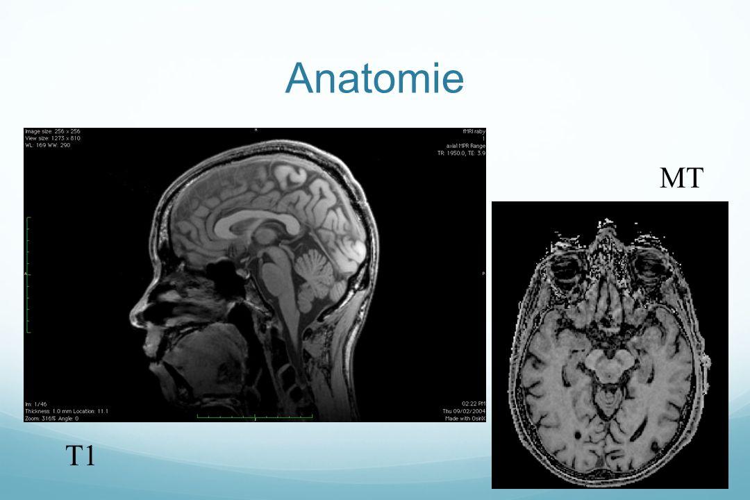 Anatomie T1 MT