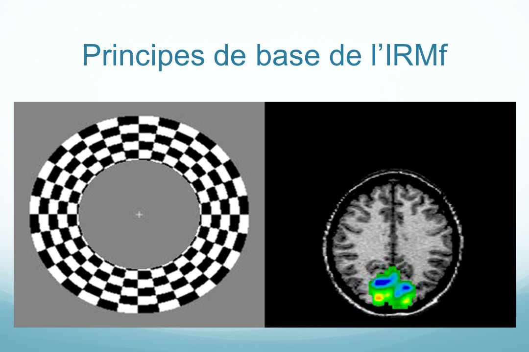 Principes de base de lIRMf