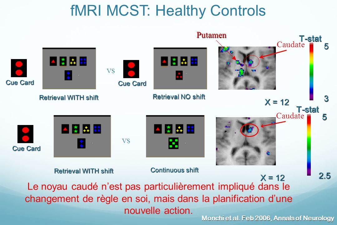Continuous shift Retrieval WITH shift VS Retrieval WITH shift VS Retrieval NO shift Retrieval NO shift fMRI MCST: Healthy Controls X = 12 2.5 5T-stat
