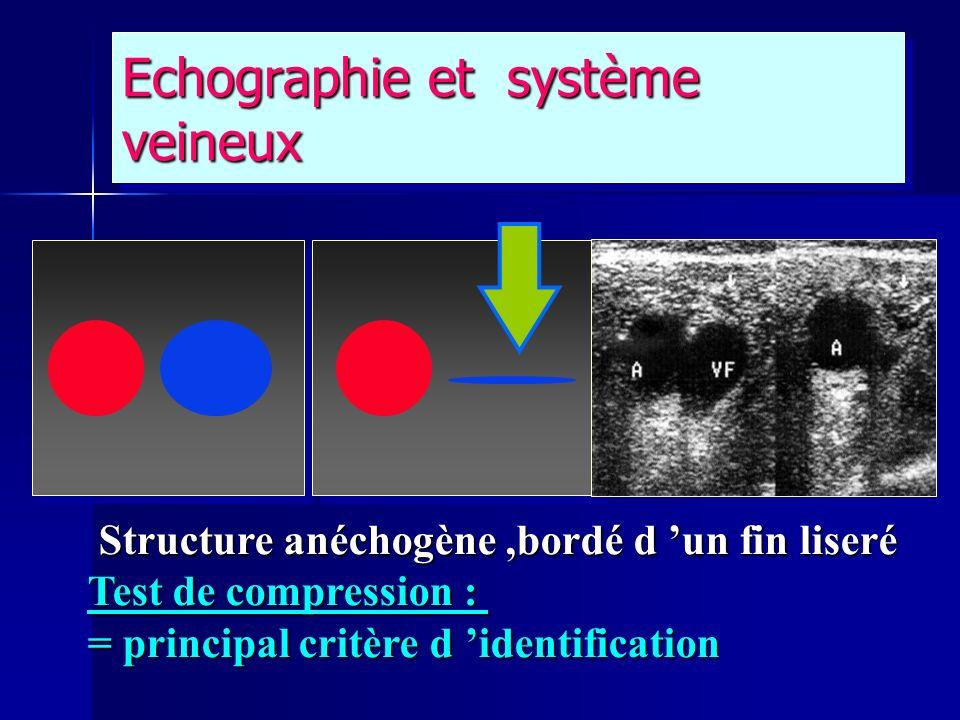 Echographie et système veineux Structure anéchogène,bordé d un fin liseré Structure anéchogène,bordé d un fin liseré Test de compression : = principal