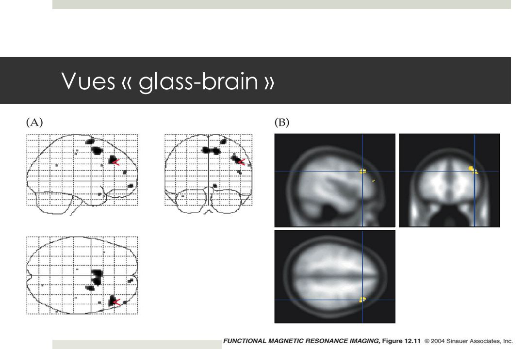 Vues « glass-brain »