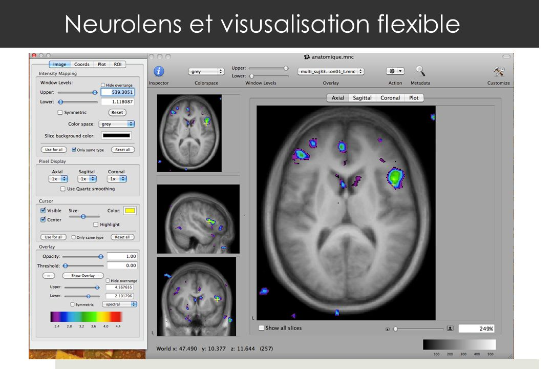 Neurolens et visusalisation flexible