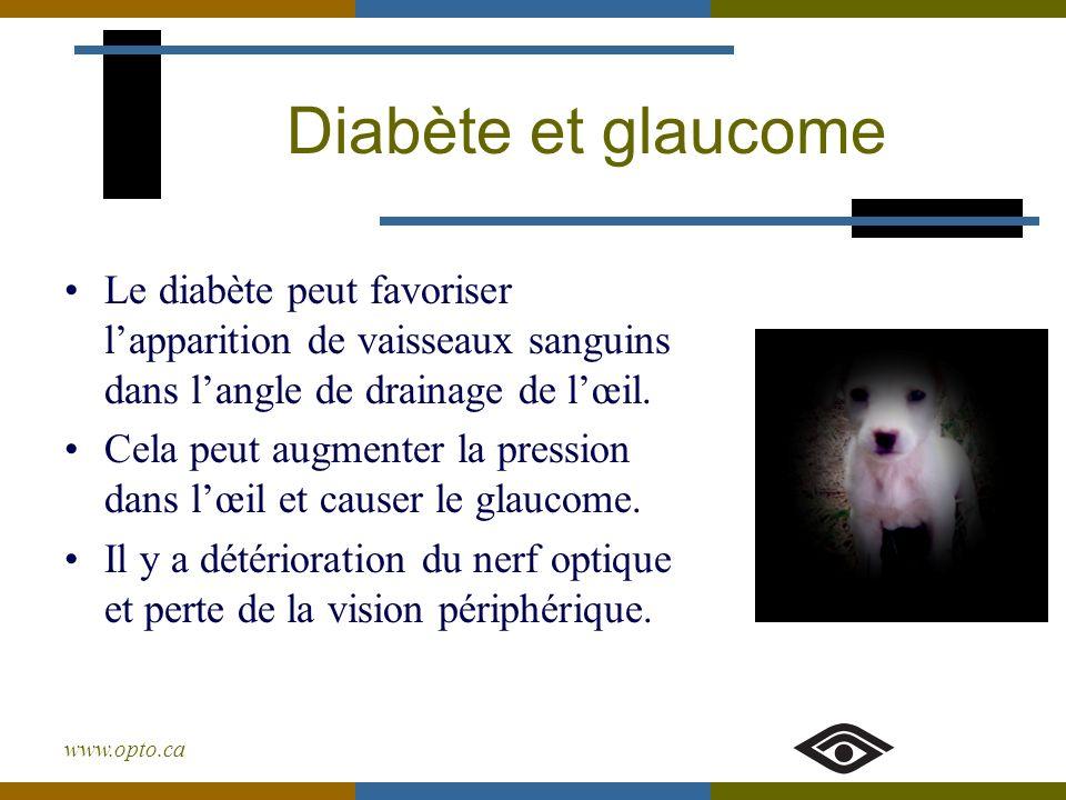 www.opto.ca Diabète et glaucome Le diabète peut favoriser lapparition de vaisseaux sanguins dans langle de drainage de lœil. Cela peut augmenter la pr