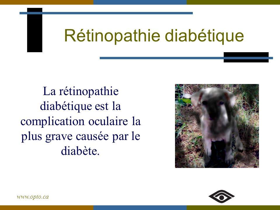 www.opto.ca Rétinopathie diabétique La rétinopathie diabétique est la complication oculaire la plus grave causée par le diabète.