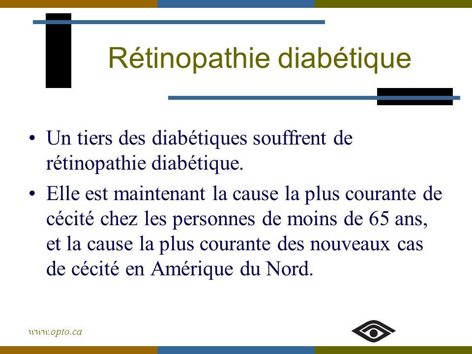www.opto.ca Rétinopathie diabétique Un tiers des diabétiques souffrent de rétinopathie diabétique. Elle est maintenant la cause la plus courante de cé