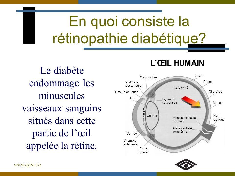 www.opto.ca En quoi consiste la rétinopathie diabétique? Le diabète endommage les minuscules vaisseaux sanguins situés dans cette partie de lœil appel