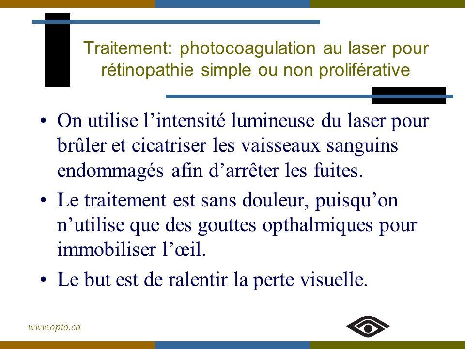 www.opto.ca Traitement: photocoagulation au laser pour rétinopathie simple ou non proliférative On utilise lintensité lumineuse du laser pour brûler e