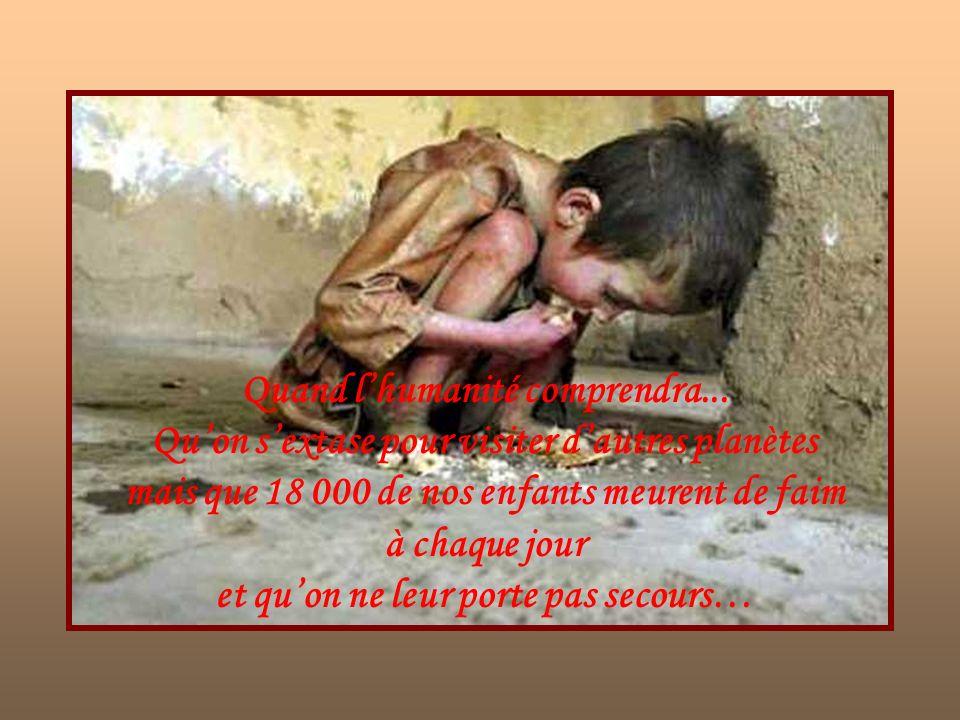 Quand lhumanité comprendra… Quaucun enfant ne mérite de mourir dans cet état….