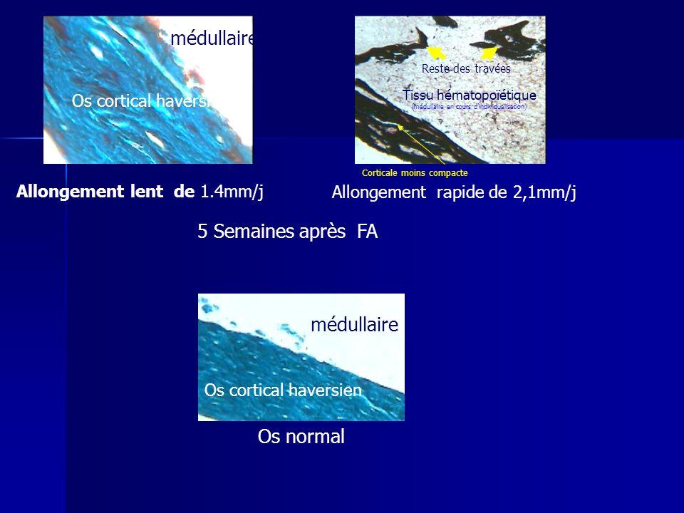 Allongement rapide de 2,1mm/j Allongement lent de 1.4mm/j Os normal 5 Semaines après FA Os cortical haversien médullaire Tissu hématopoïétique (médull