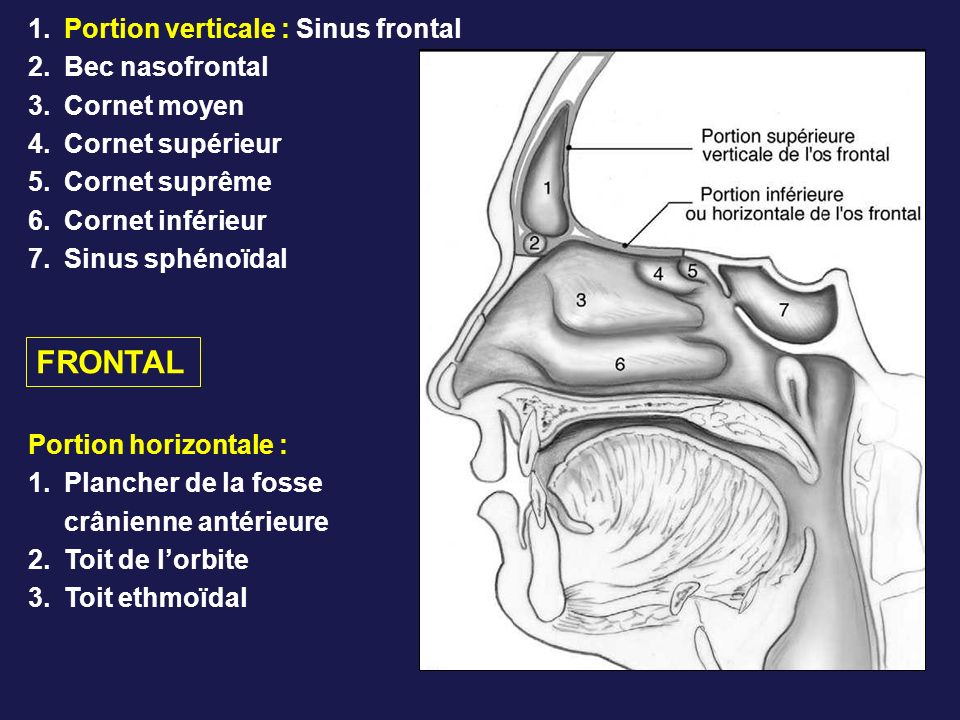 1.Portion verticale : Sinus frontal 2.Bec nasofrontal 3.Cornet moyen 4.Cornet supérieur 5.Cornet suprême 6.Cornet inférieur 7.Sinus sphénoïdal Portion horizontale : 1.Plancher de la fosse crânienne antérieure 2.Toit de lorbite 3.Toit ethmoïdal FRONTAL