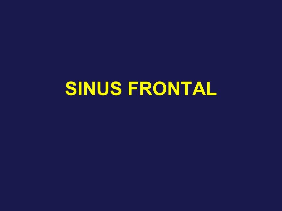 SINUS FRONTAL