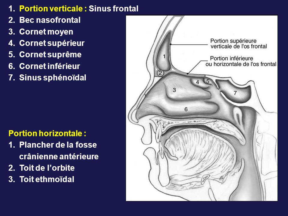 1.Portion verticale : Sinus frontal 2.Bec nasofrontal 3.Cornet moyen 4.Cornet supérieur 5.Cornet suprême 6.Cornet inférieur 7.Sinus sphénoïdal Portion