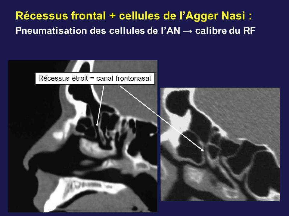 Récessus frontal + cellules de lAgger Nasi : Pneumatisation des cellules de lAN calibre du RF Récessus étroit = canal frontonasal