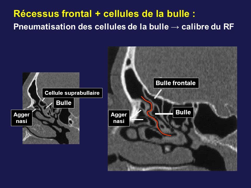 Bulle Bulle frontale Agger nasi Cellule suprabullaire Bulle Agger nasi Récessus frontal + cellules de la bulle : Pneumatisation des cellules de la bul