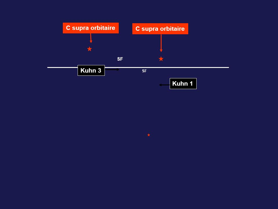 SF Kuhn 3 Kuhn 1 C supra orbitaire