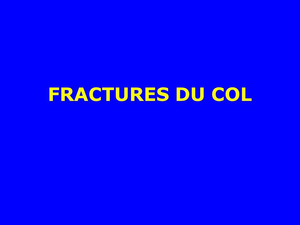 Exemple dune fracture sous trochantérienne survenue au dessous dune hanche enraidie par une coxarthrose : prothèse totale et cerclages Autres méthodes possibles : les prothèses