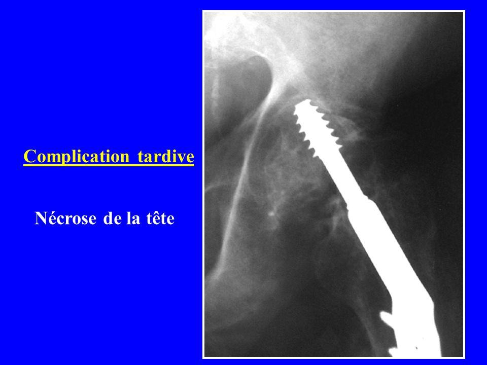 Fractures itératives du fémur Sous ostéosynthèse : 0,5 à 0,75% Sous prothèse: 0,75 à 1,12%