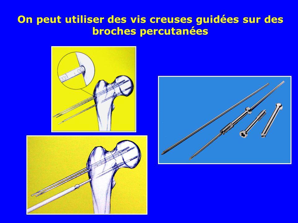 Contrôle du vissage par radioscopie F et P Photos J. Chouteau