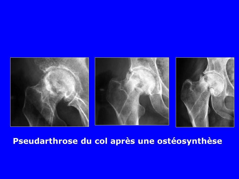 Évolution des fractures du col Risque important de Nécrose Pseudarthrose Coxarthrose