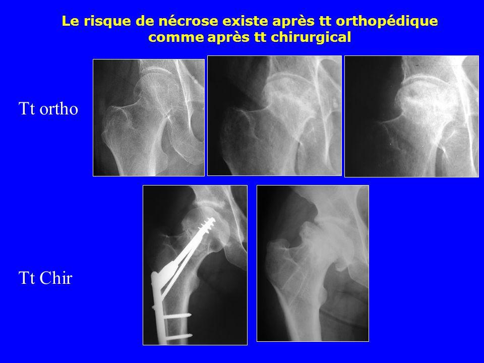 Ostéonécrose aseptique de la tête fémorale survenant sur une fracture Garden I après consolidation