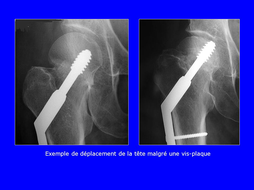 Le risque de nécrose existe après tt orthopédique comme après tt chirurgical Tt ortho Tt Chir