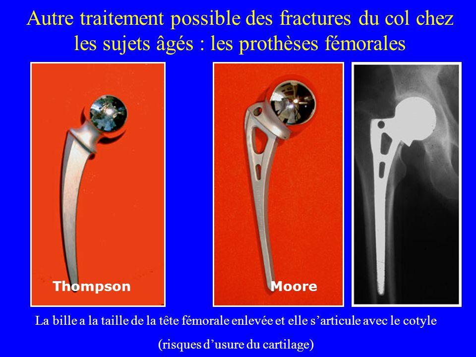 La coxarthrose peut se développer après des fractures du col Fracture consolidée en coxa valga : coxarthrose avec pincement de linterligne
