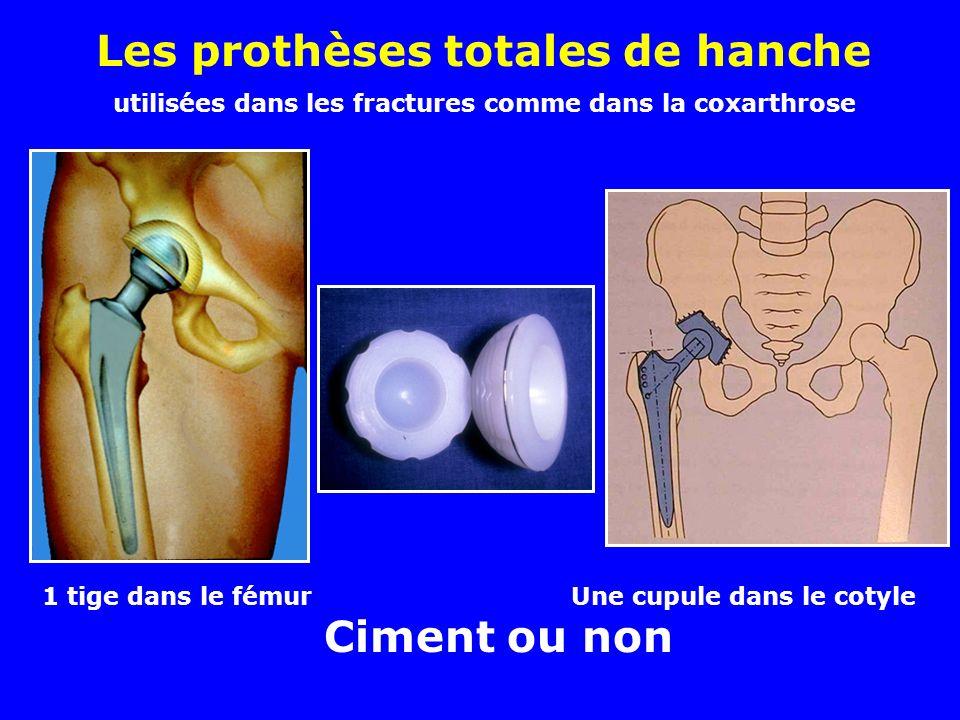 Autre traitement possible des fractures du col chez les sujets âgés : les prothèses fémorales Thompson Moore La bille a la taille de la tête fémorale