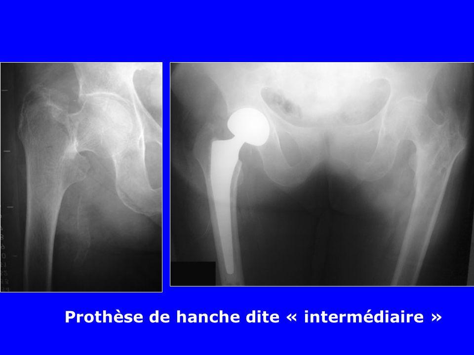 Les prothèses dites « intermédiaires » Bille de 28 mm dans une cupule blindée qui sarticule avec le cartilage du cotyle