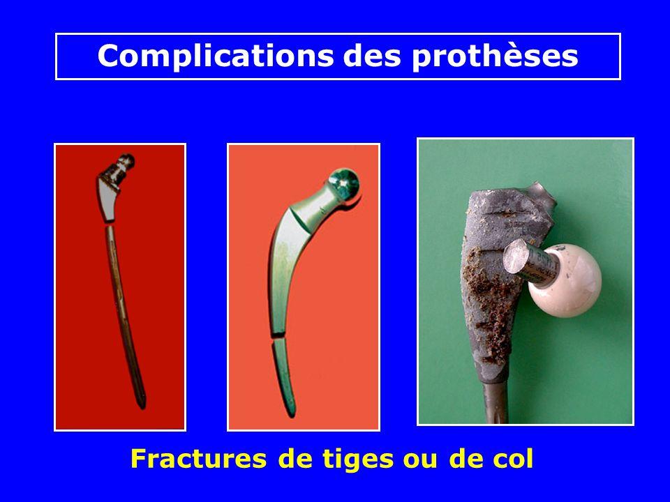 Prothèse totale avec cupule à double mobilité « anti luxation » Photos J. Chouteau