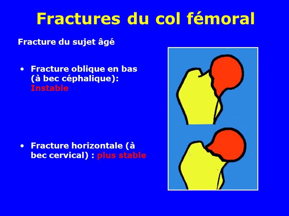 Fractures du col fémoral Fracture oblique en bas (à bec céphalique): Instable Fracture horizontale (à bec cervical) : plus stable Fracture du sujet âgé