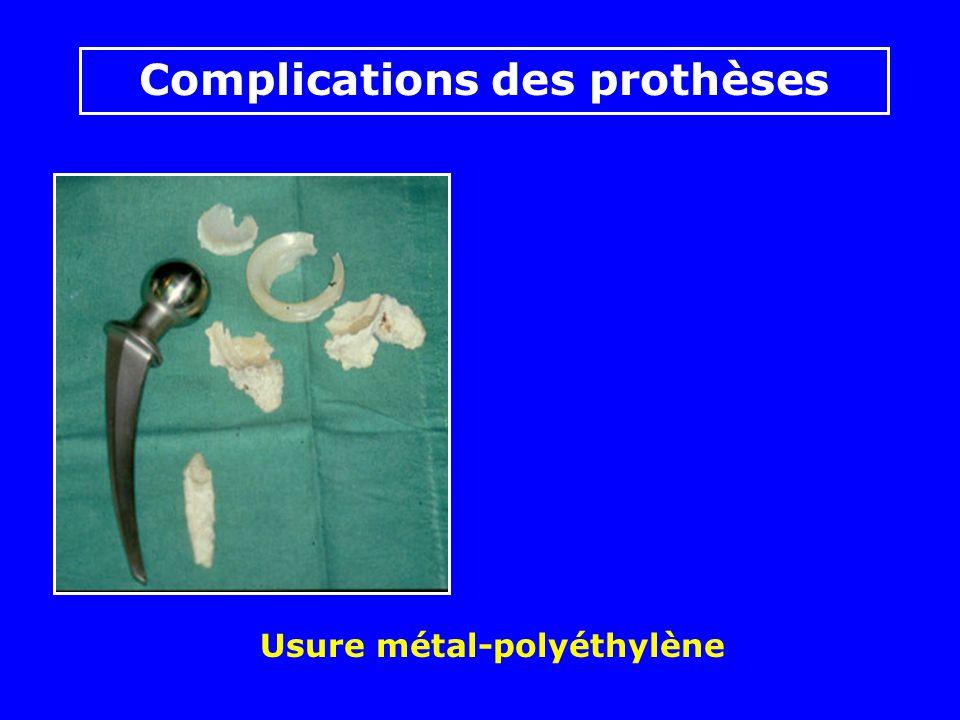 Fractures de tiges ou de col Complications des prothèses